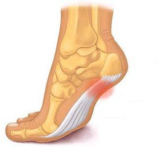 heel pain after sitting